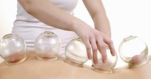 cupping massage messina